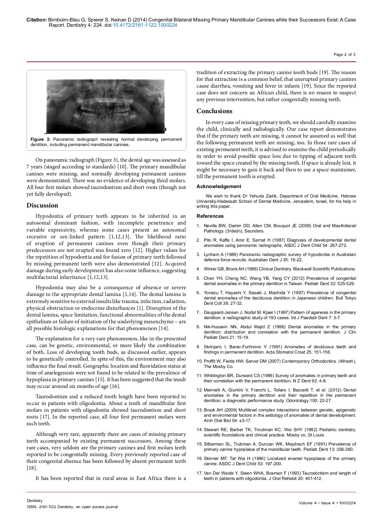 Congenital Bilateral Missing Primary Mandibular Canines     Pages 1