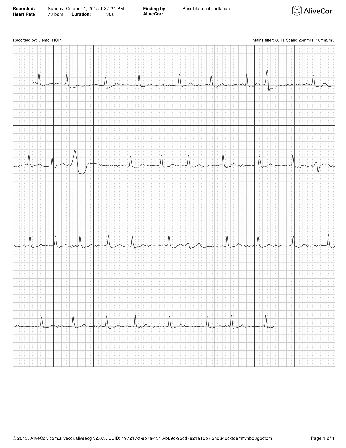 Sample ECG printouts Pages 1 - 4 - Text Version | AnyFlip
