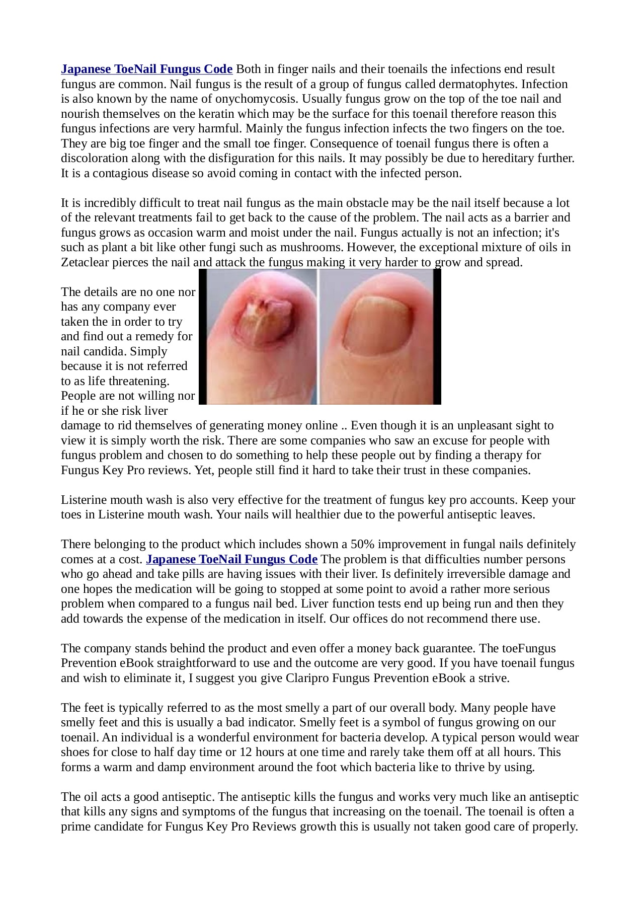 Http Goldenhealthcenters Com Japanese Toenail Fungus Code Pages